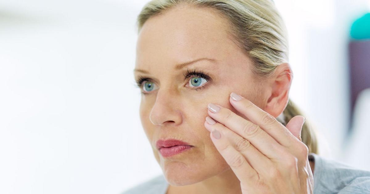 Szem környéki bőrbetegség - Bőrbetegségek