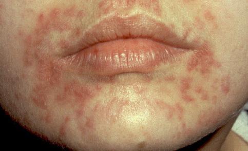 vörös foltok a bőrön zúzódások formájában