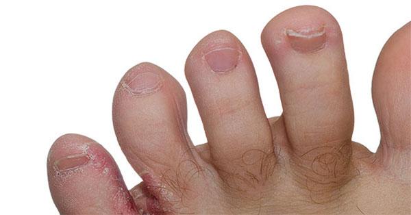 vörös foltok hólyagokkal a lábujjakon)
