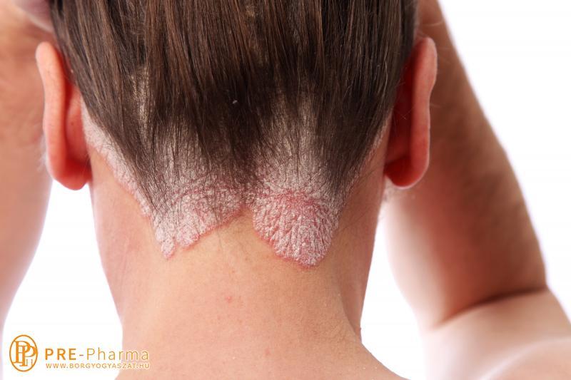 keres pikkelysömör kezelése vörös megemelt folt jelent meg az arcon