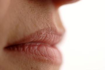 az ajkak sarkában vörös foltok és hámlás vannak)