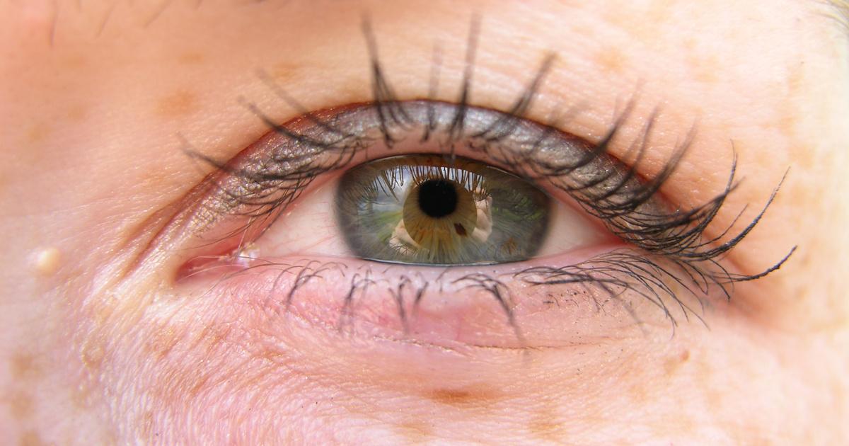 hogyan kell kezelni a szem vörös foltját pikkelysömör kezelése saki iszap