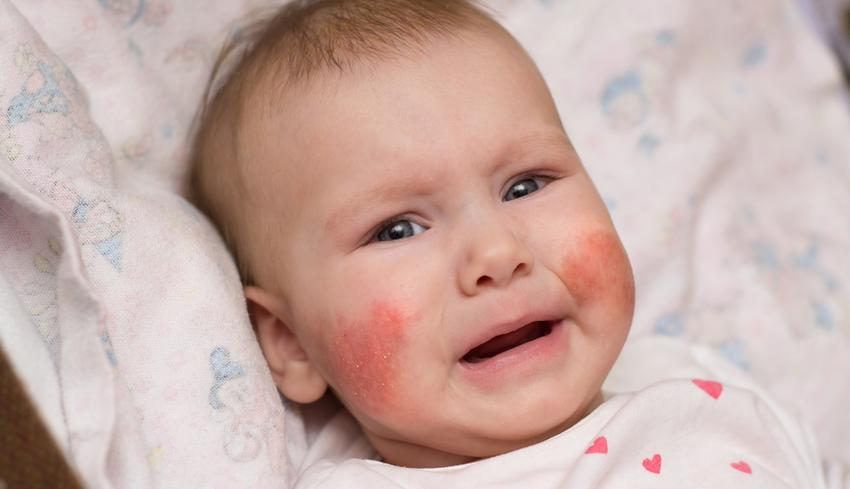 vörös folt jelent meg az arcon, égett