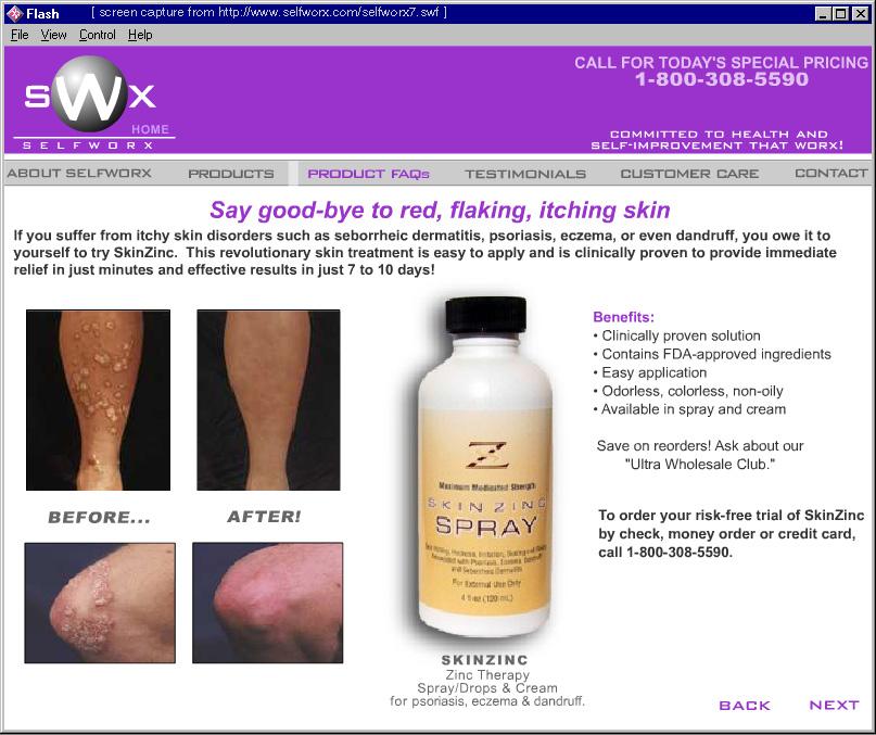 skin-cap spray reviews psoriasis