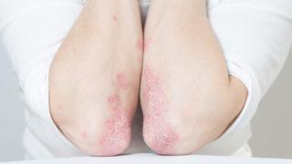 modern pikkelysömör kezelés 2020 folt a bőrön piros peremkezeléssel