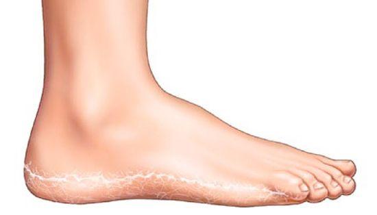 vörös folt pustulákkal a lábán