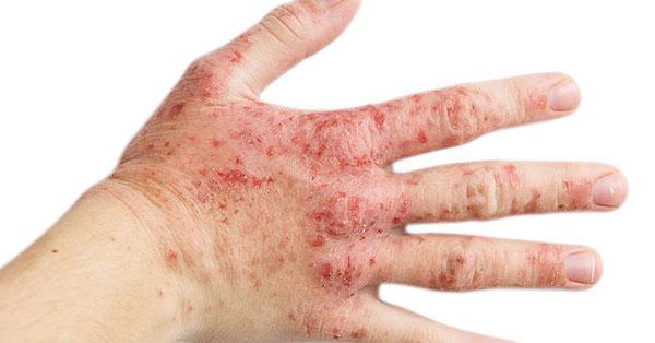 krém pikkelysömörre és zuzmóra vörös foltok a hónalj kezelésén