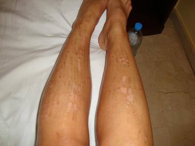 vörös foltok a bőrön szőrtelenítés után