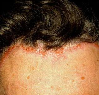 fejbőr pikkelysömör orvosság