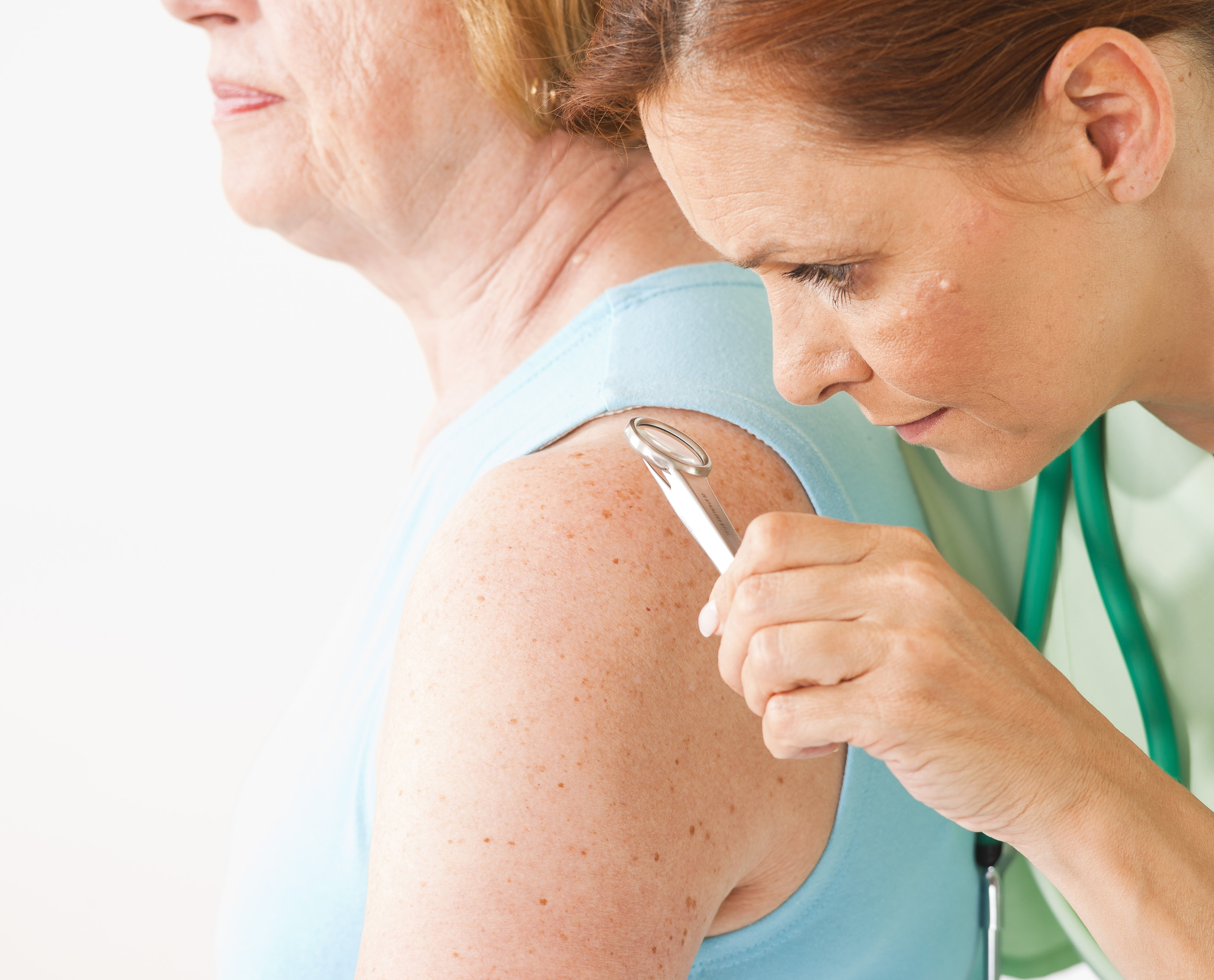 német psoriasis kezelése milyen betegsg a pikkelysmr, mit okoznak s hogyan kell kezelni