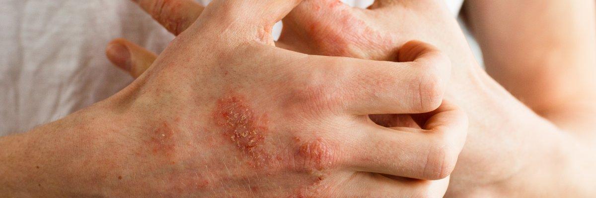hogyan lehet enyhíteni a pikkelysömör súlyosbodását a fején vörös foltok a lábakon lábfájdalom