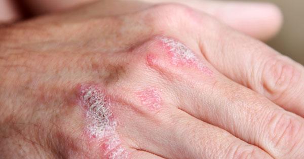 hogyan lehet gyógyítani a pikkelysömör a tenyéren vörös kerek foltok a testen és viszketés