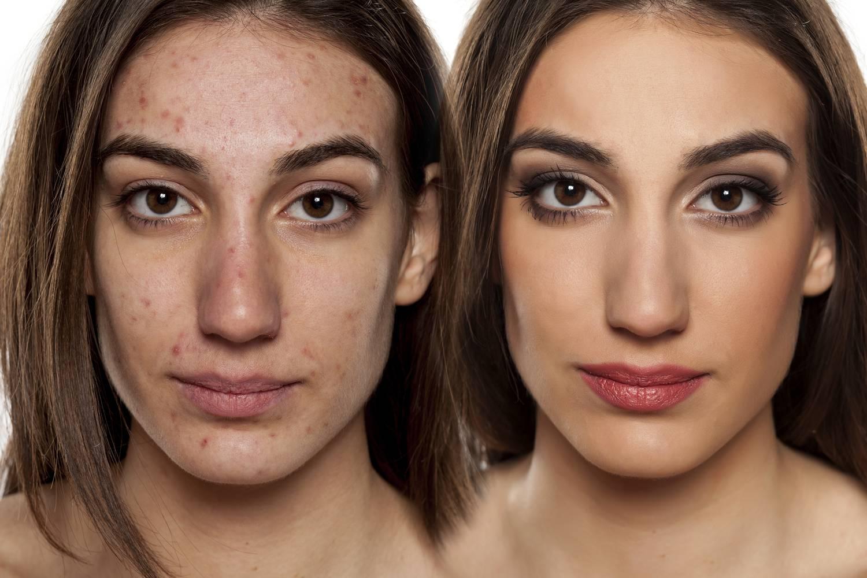 hogyan lehet megfelelően eltakarni az arc vörös foltjait