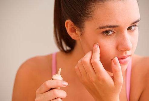 hogyan lehet megszabadulni a vörös foltok arcán fellépő irritációtól