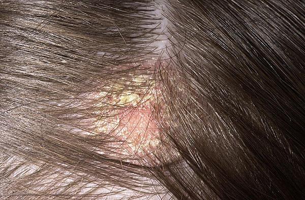 kiütés a fejbőrön vörös foltok formájában felnőtteknél