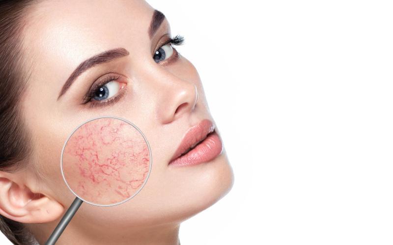 orvosságok az arcon lévő vörös foltok ellen vörös folt az arc bőrén viszket