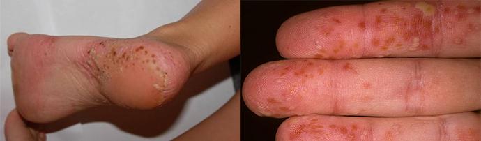 pikkelysömör barbera kezelés metotrexáttal