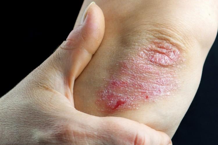 pikkelysömör fotó a kezdeti stádiumú kezelésről a lábon