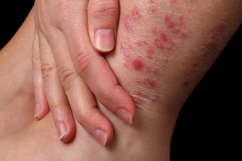 pikkelysömör örökletes betegség kezelése vörös foltok a bőr idegein