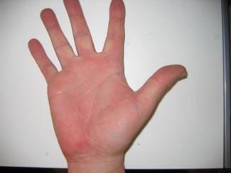 piros folt a kezén mit jelent
