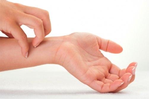 piros foltokkal borított kezek mit kell tenni