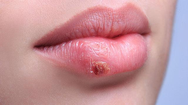 Herpesz: ajakherpesz és nemi herpesz