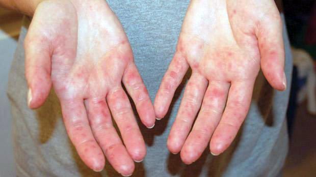 foltok a talpon - Bőrbetegségek