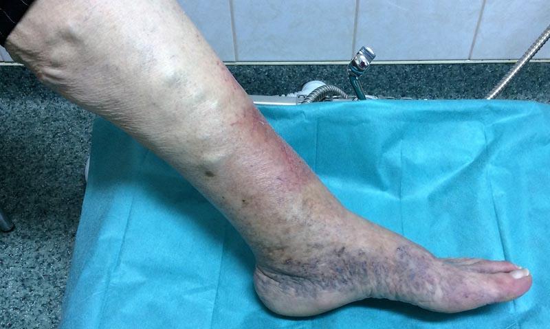 vörös foltok az alsó lábszáron duzzadt lábakon fényes vörös folt van a bőrön