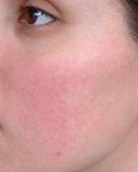vörös foltok az arcon és az orron)