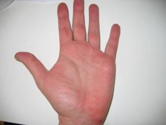 vörös foltok az egyik kéz tenyerén)