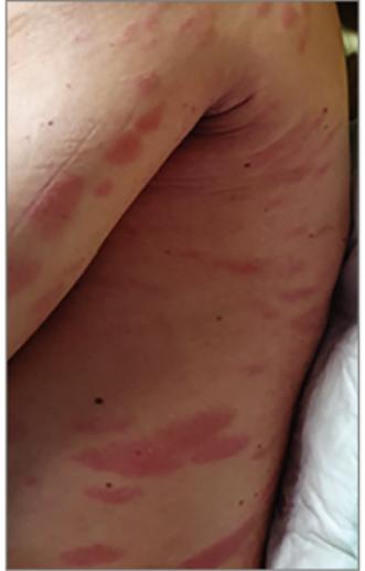 vörös foltok és bőrkiütés egy felnőttnél